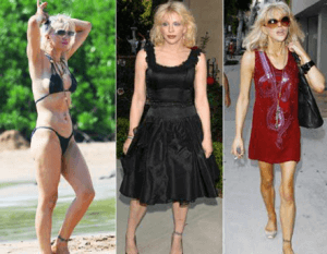 Courtney Love Fat Slobby Skinny Anorexic Drugs